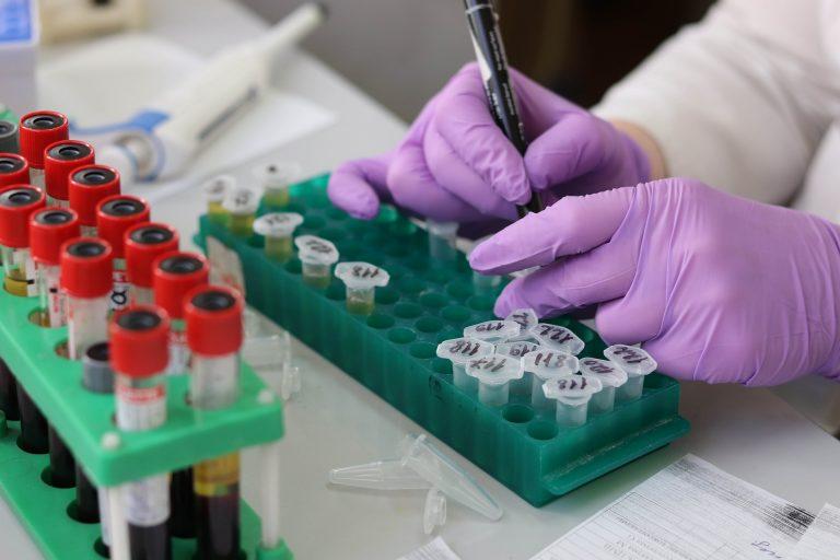 Studie: minderheden structureel ondervertegenwoordigd in kankeronderzoek